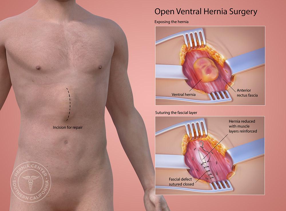 Abdominal Hernia Treatment Pasadena Orange County CA