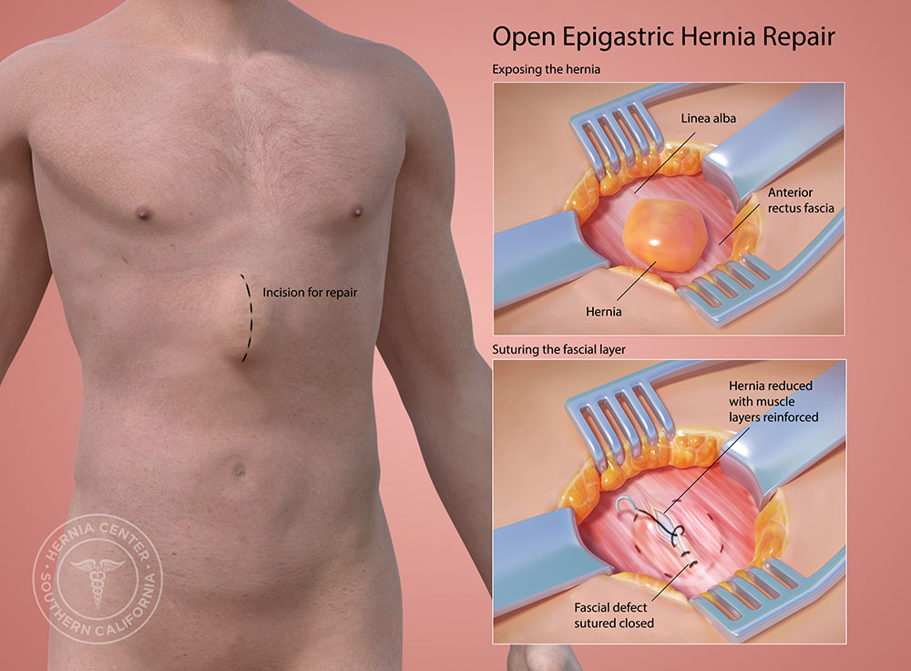 Open epigastric hernia surgery