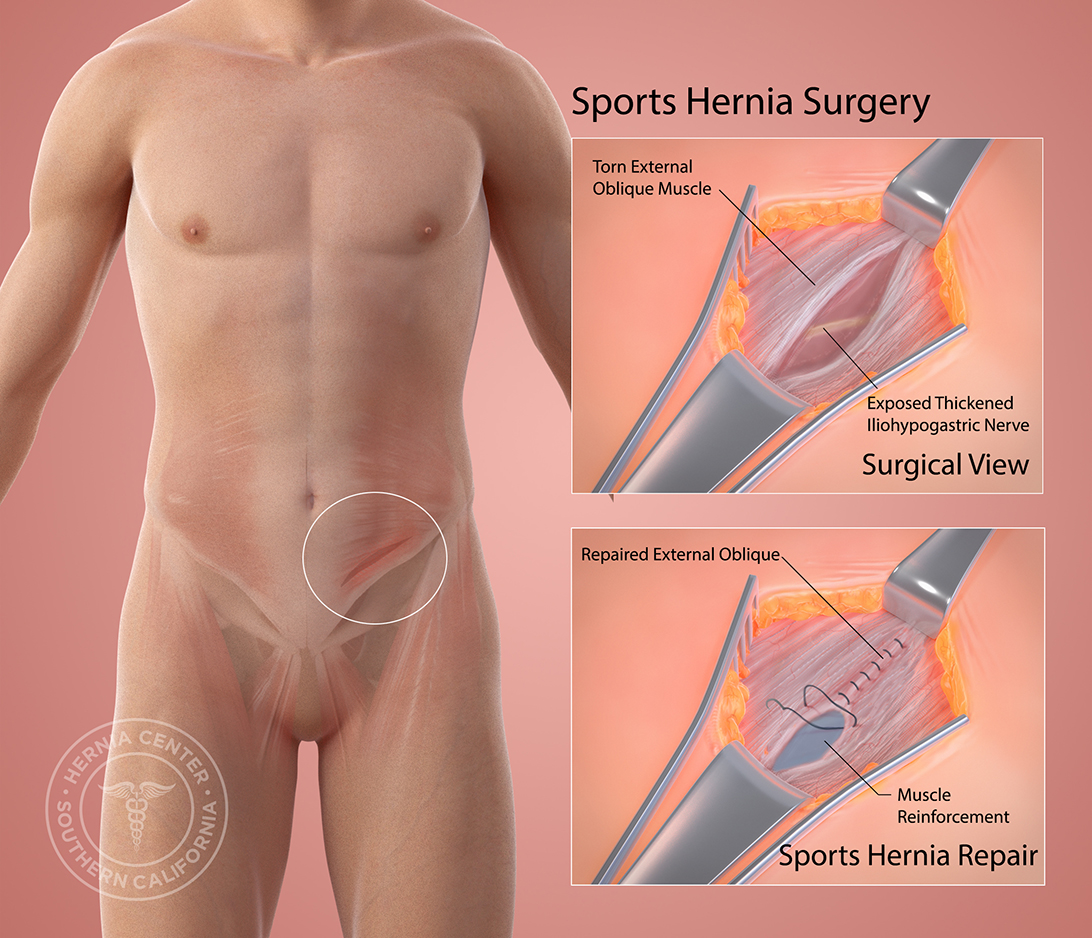 Sports Hernia Surgery Southern California