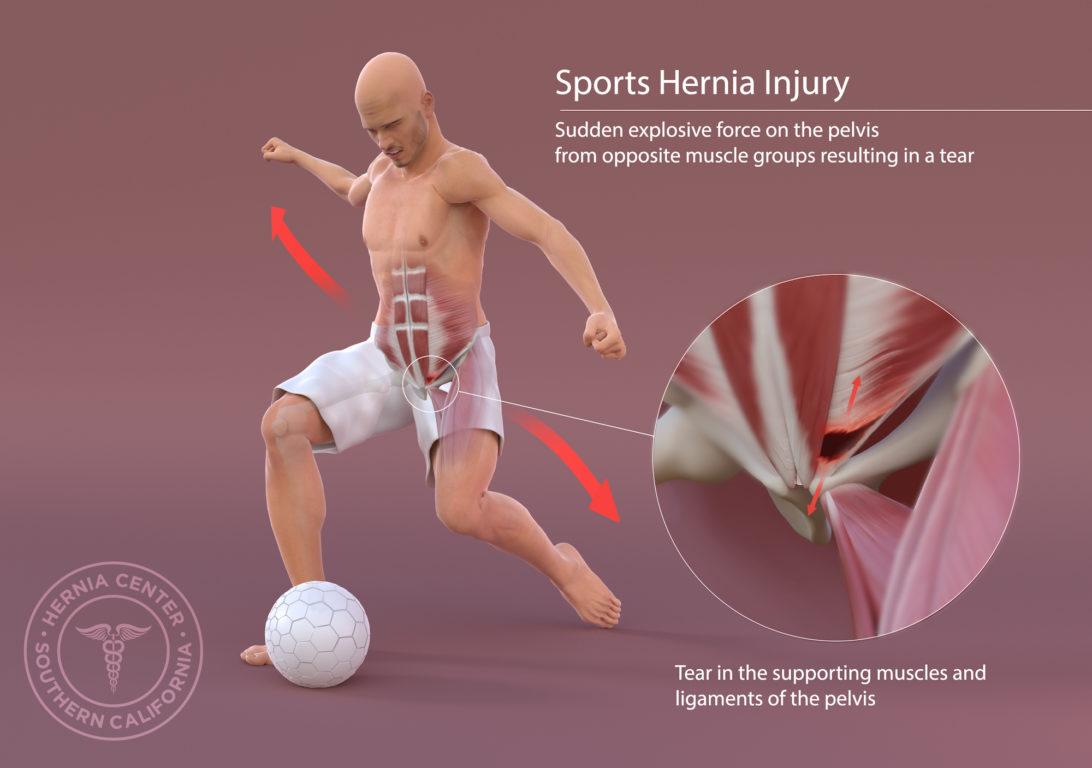 Sports Hernia Symptoms Southern California